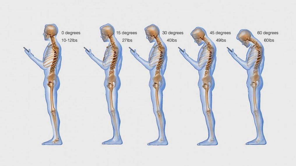 Text neck enfermedad (6)