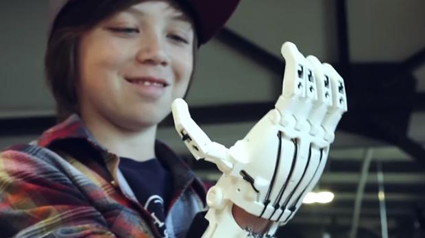 ortopedia impresion 3d
